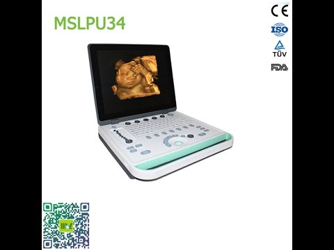 2016 Latest brand new cheap 3d laptop ultrasound machine MSLPU34