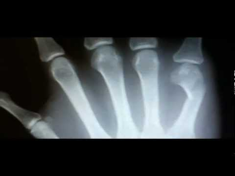 Metacarpal Fracture: Symptoms, X-Ray Findings, Treatment