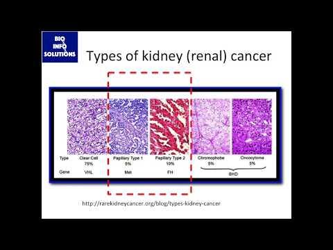 Rare Cancer Meta-Analysis, pt.1: Background on papillary renal cell carcinoma