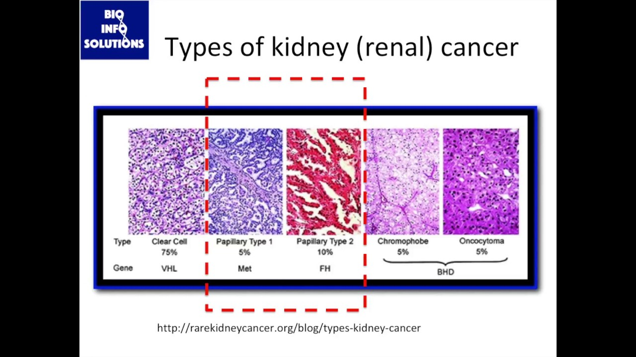 Rare Cancer Meta Analysis Pt 1 Background On Papillary Renal Cell Carcinoma Youtube