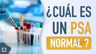 propolis mézes kezelés prosztatitis A prosztata rendszerrel rendelkező ellenőrző
