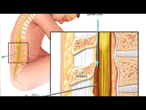 lumbar-puncture-lecture-by-sahu-sir-voogly