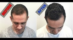 Grow Back Your Hair with Platelet Rich Plasma (PRP Treatment)