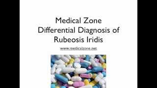 Medical Zone - Differential Diagnosis of Rubeosis Iridis
