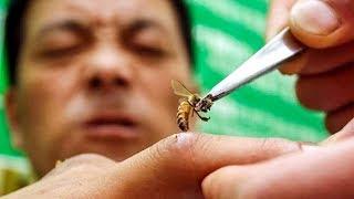 Укус пчелы: вред или укрепление здоровья? Апитерапия -- панацея от множества болезней.