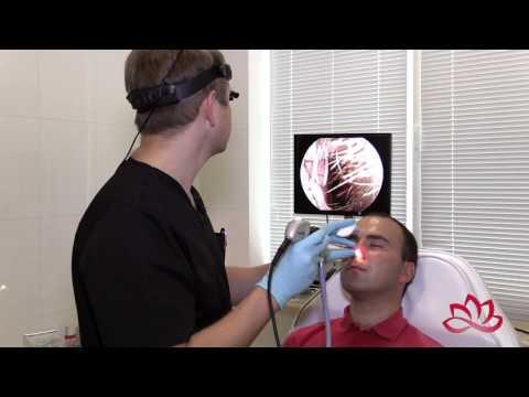 Как проводится эндоскопическое ЛОР-обследование
