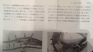 2017.09.24 東大宮サイゼリア 医学書院 162 1220 thumbnail