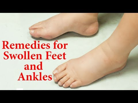 10 Natural Remedies For Swollen Feet And Ankles |  Ways to Reduce EDEMA Naturally at Home |