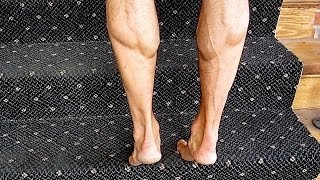 How to Heal Achilles Tendon Injuries