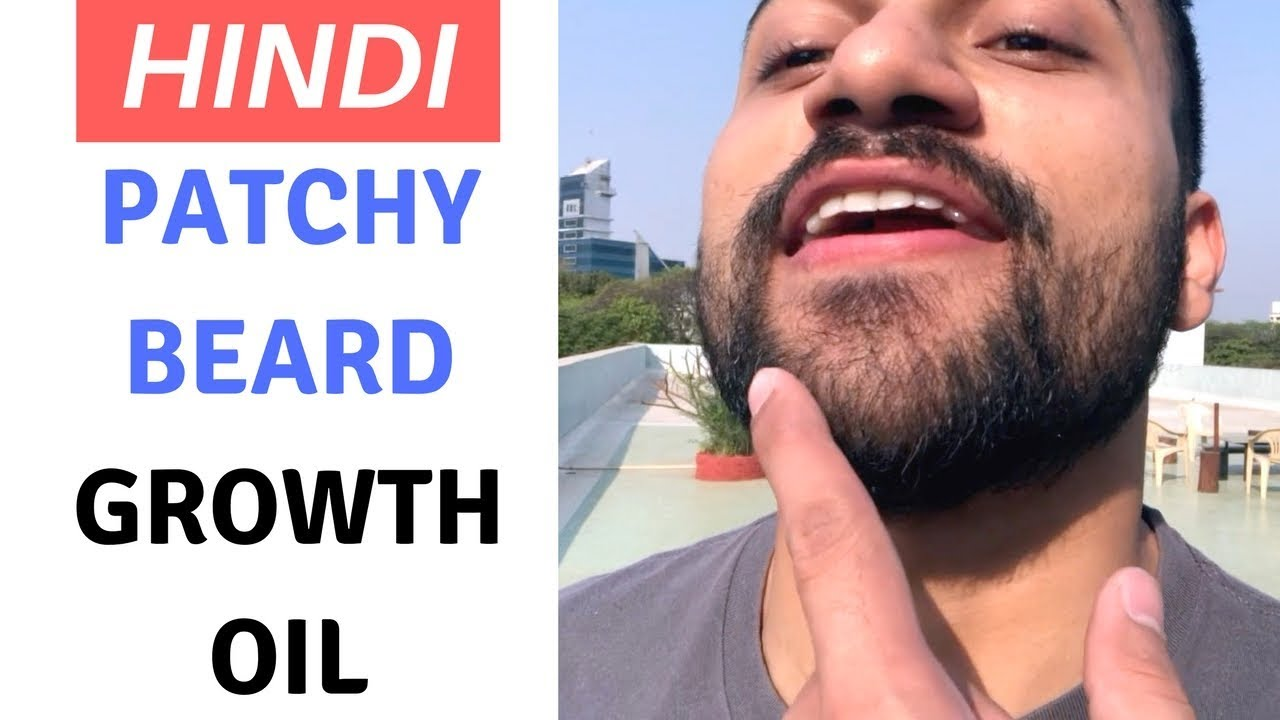 patchy beard growth tips in hindi