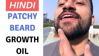 hindi Beard Grooming Tips for Men in Hindi - Patchy Beard Growth Oil