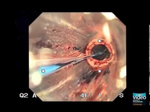 Endoscopic Transgastric Necrosectomy in Necrotizing Pancreatitis