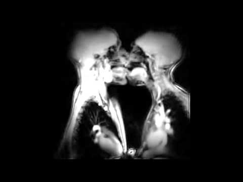 Anatomy of kissing and love in magnetic resonance imaging (MRI) scanner