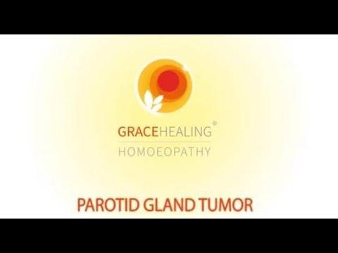 pleomorphic adenoma treatment in homeopathy)