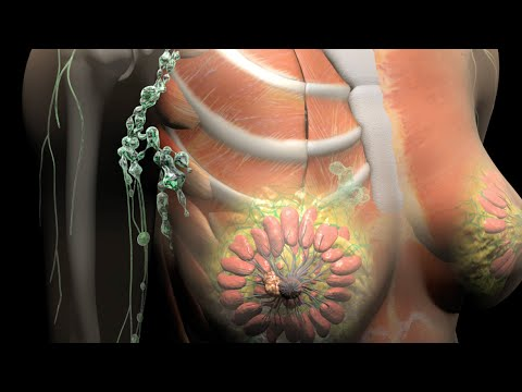 Breast Cancer | Staging | Nucleus Health