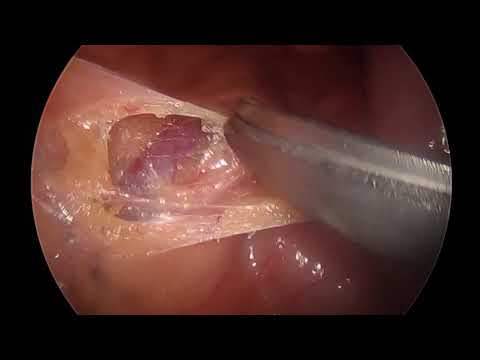 Surgical Case - Presacral Neurectomy