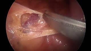 Presacral Neurectomy - Anatomy and Technique