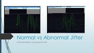 Normal Jitter vs Abnormal Jitter
