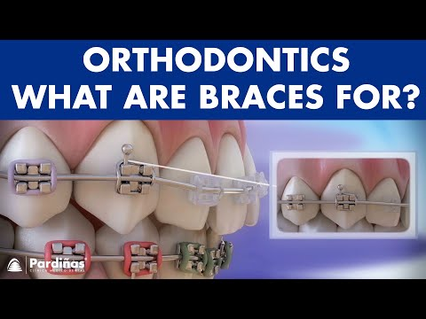How Braces Work- Elements of the orthodontic treatment and its role ©
