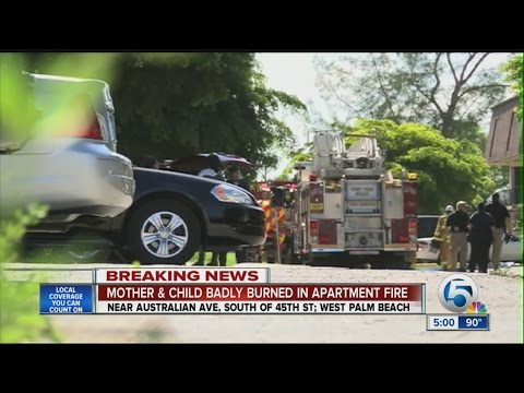 Two people burned in West Palm Beach