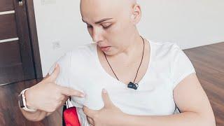 Обследование груди 👩🏼⚕️ маммолог🍒  трепан биопсия 💉 КТ