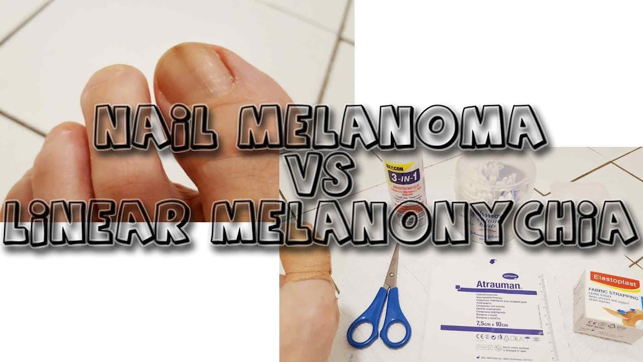 Nail melanoma VS Melanonychia | Petronela - YouTube