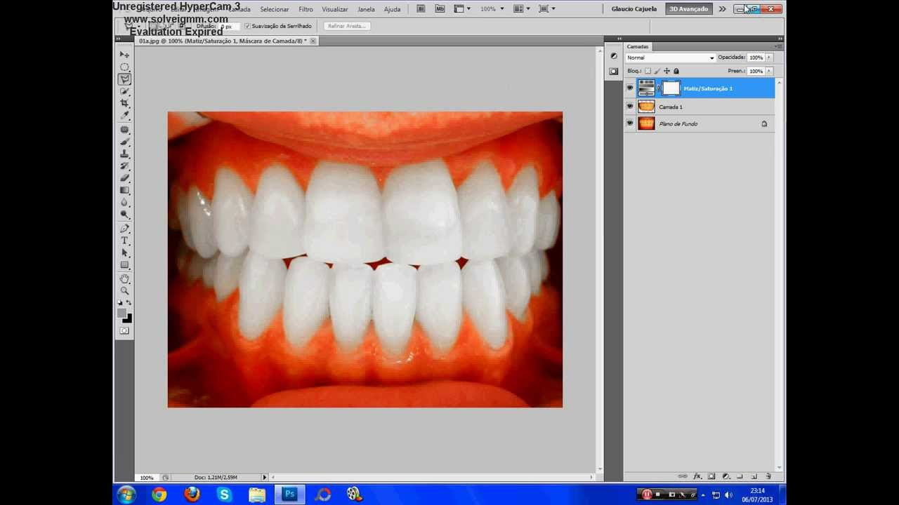 Como Deixar Os Dentes Brancos No Photoshop Cs5 Youtube