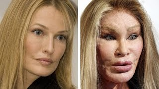 15 CELEBRITY PLASTIC SURGERY THAT WENT HORRIBLY WRONG
