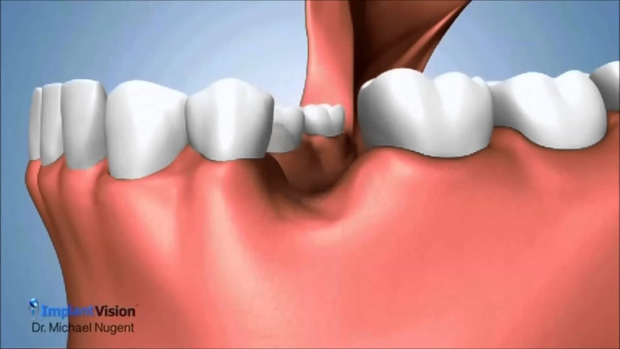 Socket Preservation After Tooth Extraction Youtube