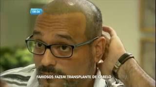 Moda: Famosos Fazem Transplante De Cabelo