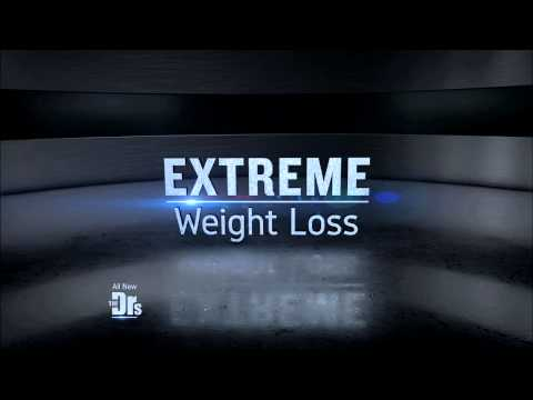 Wednesday 04/01: Extreme Weight Loss Surprise; Anti-Aging Chocolate?; Diet-Friendly Desserts - Promo