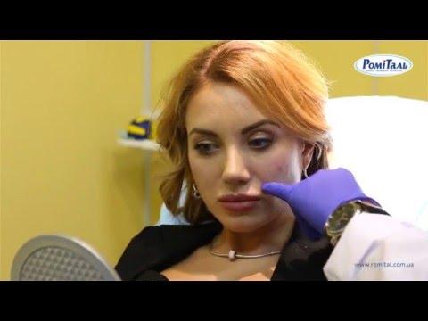 Увеличение скул в клинике РомиТаль