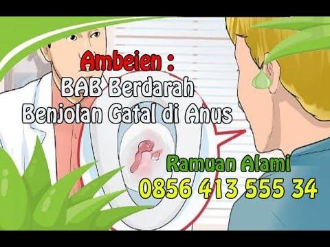 Obat Ambeien Paling Ampuh Di Apotik - YouTube