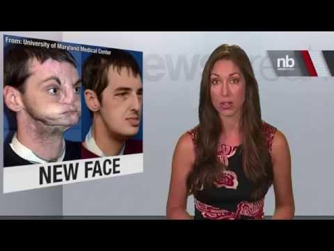 Jacqui Saburido Face Transplant