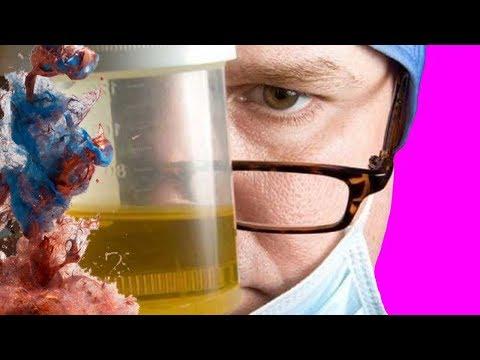 Запах мочи как симптом болезни: 11 причин, что вы пахнете аммиаком или еще хуже | неприятного | интересное | избавиться | здоровье | аммиаком | пахнете | аммиака | запаха | headinsider | урина