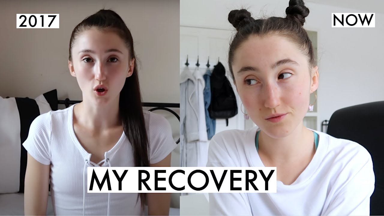 Download THE TRUTH ABOUT MY RECOVERY | 4 YEARS LATER . . .