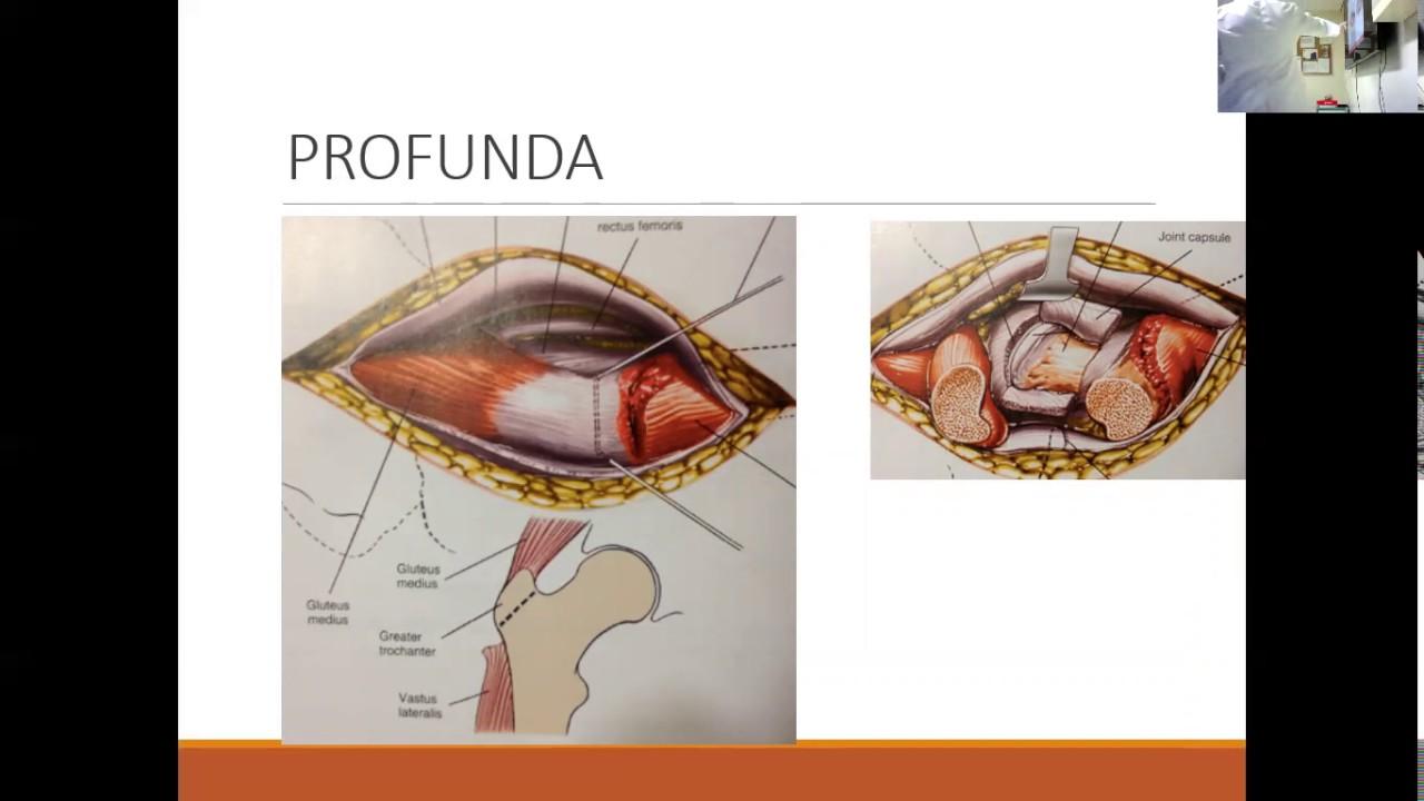 Anatomia Quirúrgica de Cadera - YouTube