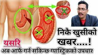 Nepali Health & Education Tips Gastric निकै खुसीको खबर अब अफैले गर्न सकिन्छ ग्यास्ट्रिकको उपचार