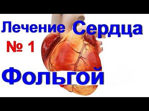 видео: Фольга для нормализации работы сердца -№1. Лечение фольгой. Боль в сердце и аритмия/ ed black