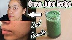 hqdefault - Best Juice Recipes For Acne