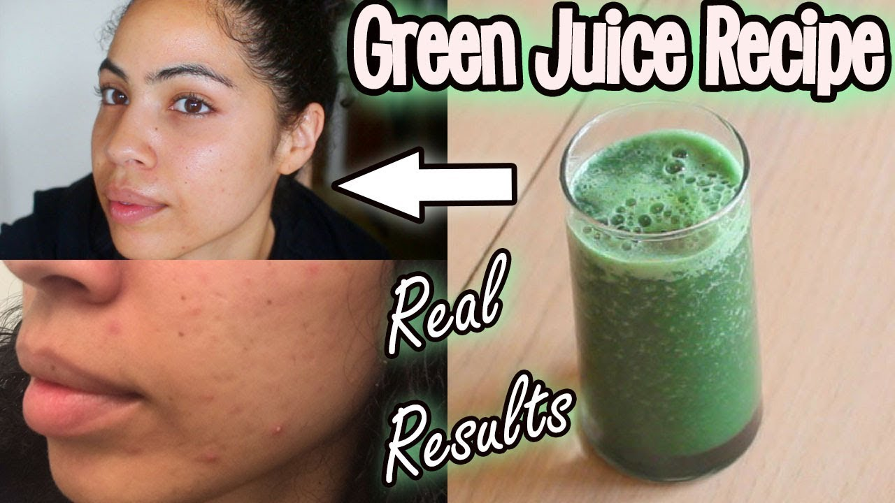 Celery Juice For Hormonal Acne: One Month Results