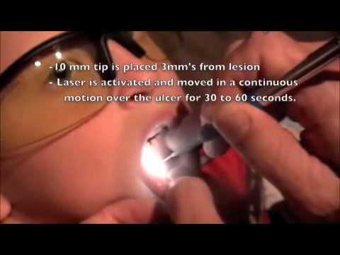 Laser Dentistry Canker Sore Treatment Dr Richard