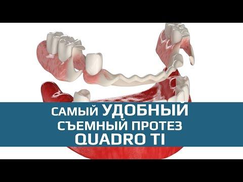 Протезирование жевательных зубов; Отзывы отсутствие
