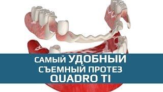 Съмные зубные протезы: съемный зубной протез Quadro Ti(Съемный зубной протез Quadro Ti - гибкий протез нового поколения. Показан при частичной адентии для замещения..., 2015-10-07T22:33:26.000Z)