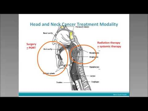 Head and Neck Cancer: An Update for GPs
