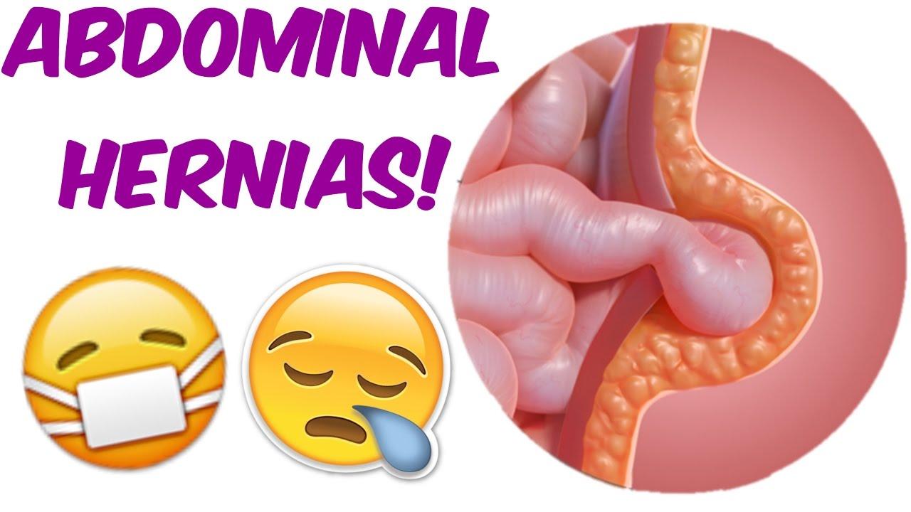 Abdominal Hernias- Loss of the \