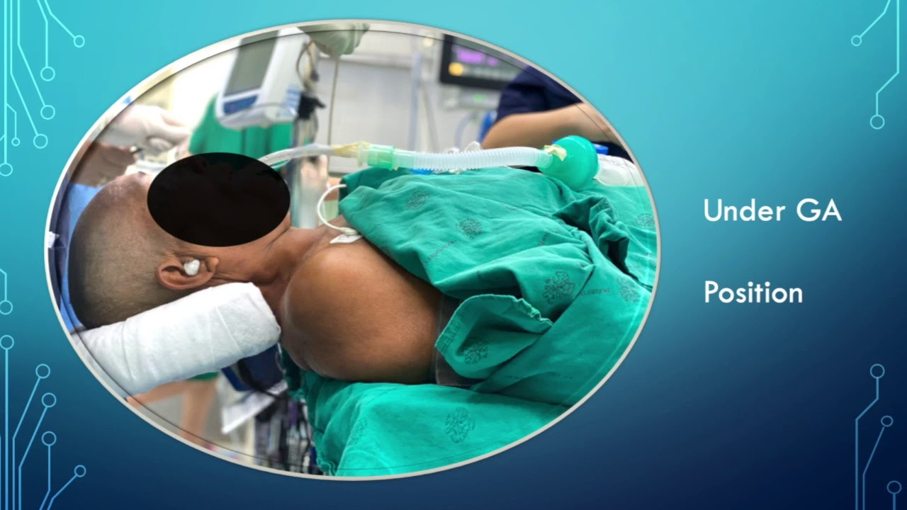 Vene varicoase: tratamente minim-invazive | adidasi-haine-online.ro