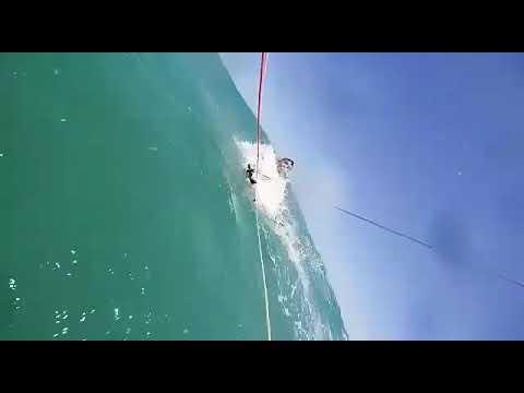 Kitesurfing Board Leash Accident