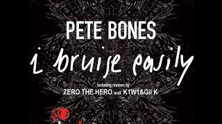 Download Mp3 Pete Bones - I Bruise Easily  Zero The Hero Remix
