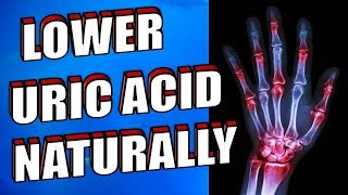 How to Control Uric Acid Naturally & Quickly | Foods to Lower Uric Acid